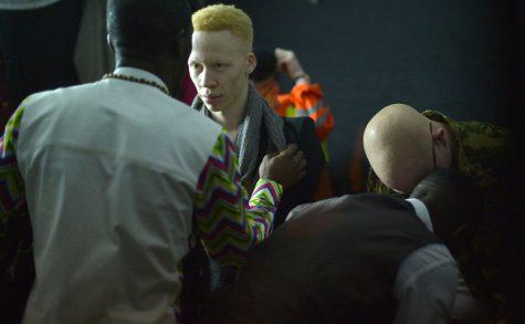 Un concours de beauté pour les albinos et contre les préjugés