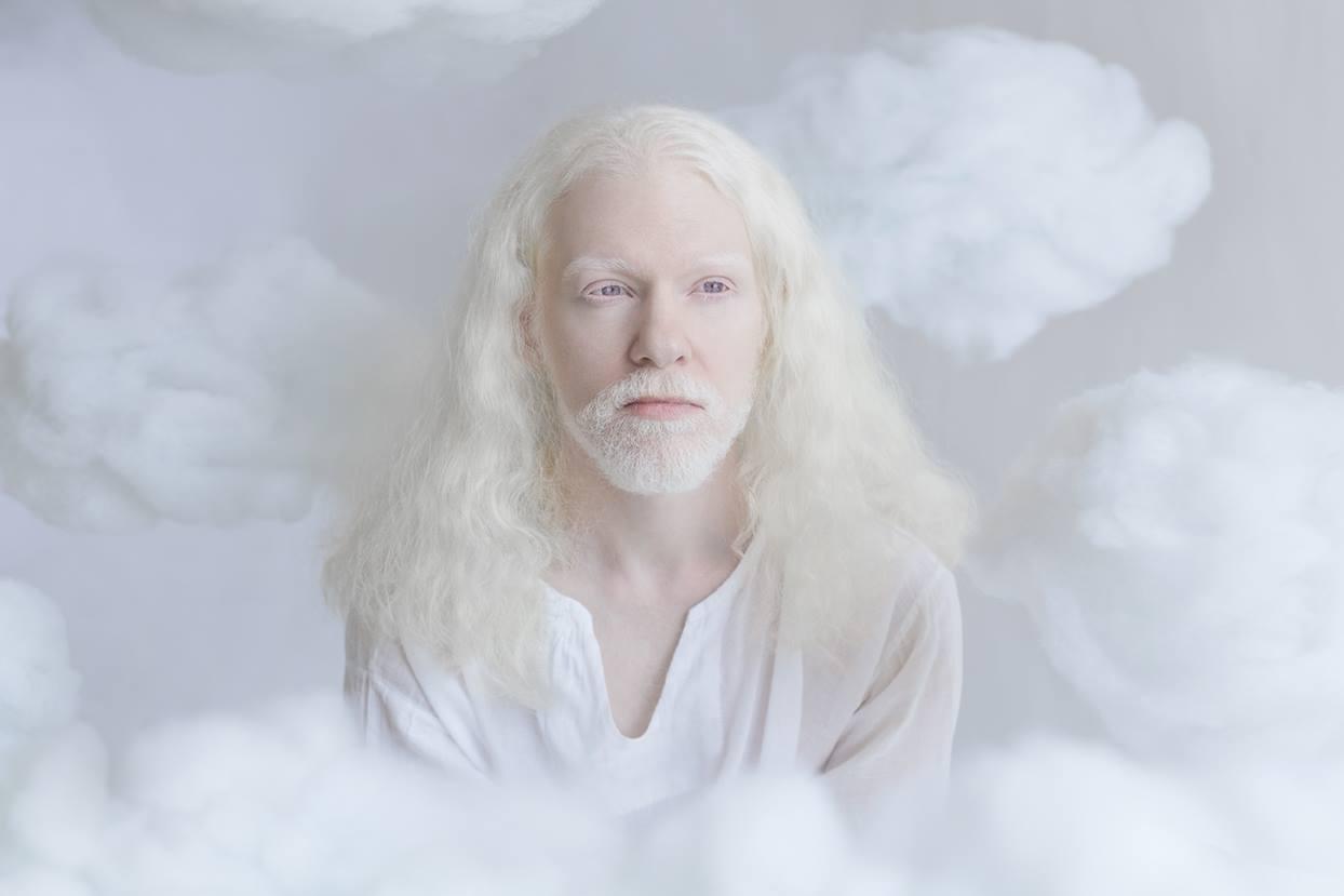 La beauté de l'albinisme en 11 photos - Citizen's Style