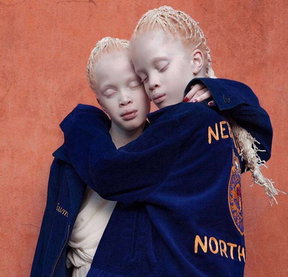 jumelle albinos