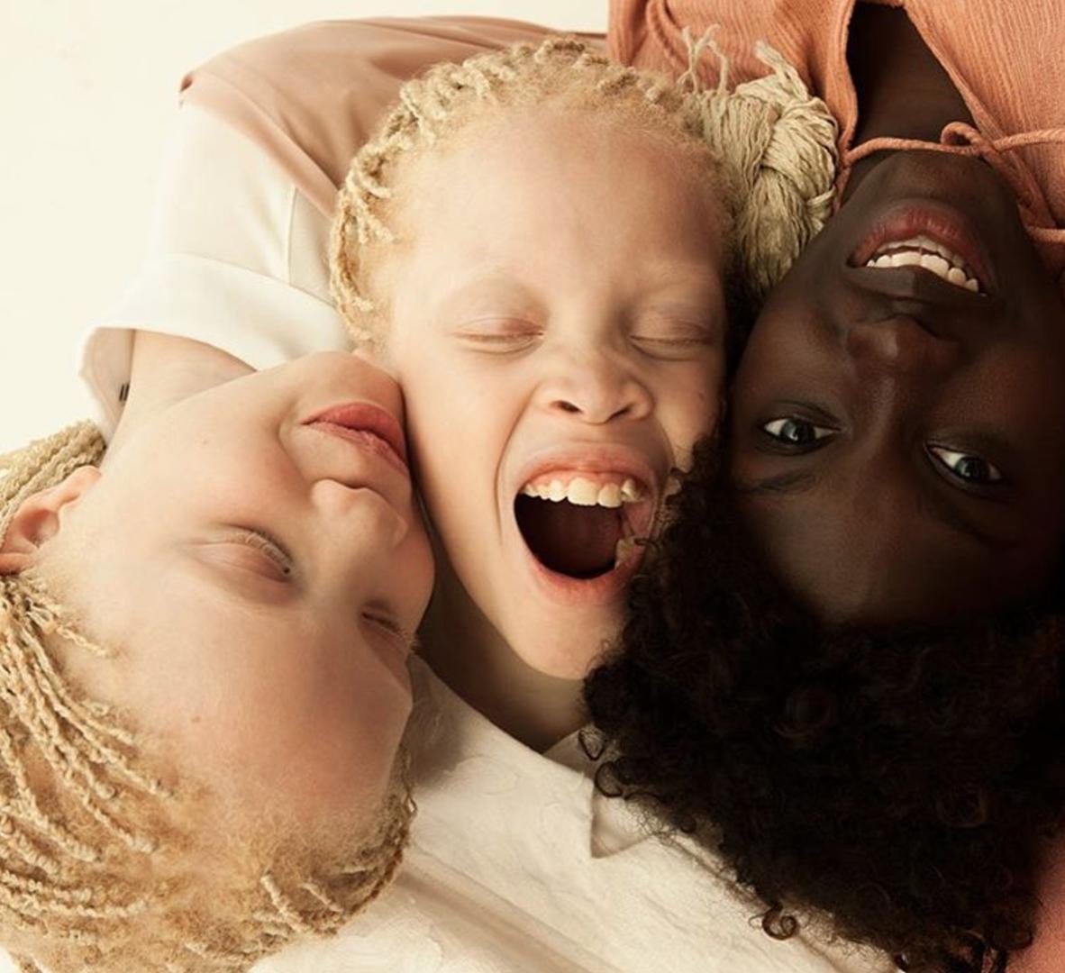 jumelles albinos